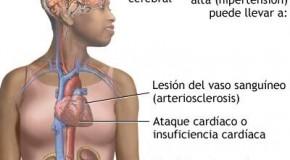 La hipertensión arterial y el noni