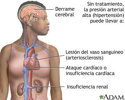 Si ya tiene hipertensión arterial, sea puntual en su medicación.